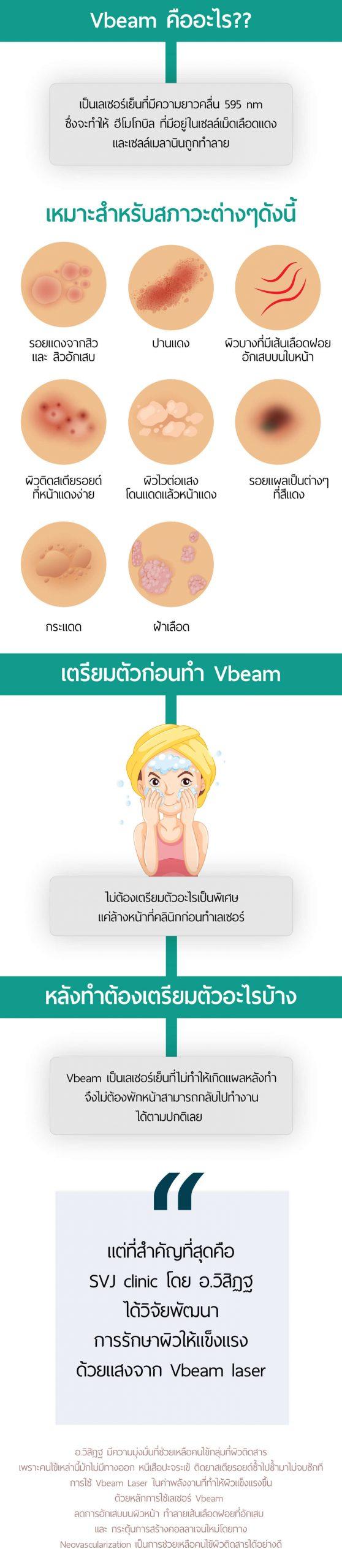 Vbeam คืออะไร